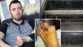 Michael přišel kvůli rozbitému eskalátoru o prst.