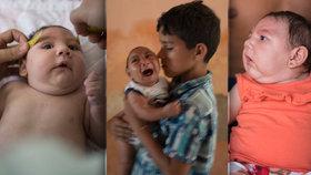 V Brazílii se rodí miminka s malou hlavou.
