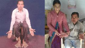 Devendra Suthar má na každé končetině sedm prstů. Celkem má tedy těžko uvěřitelných 28 prstů.