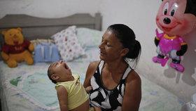 Po viru zika se rodí děti se zdeformovanou hlavičkou