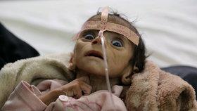 Udai Faisal zemřel na podvýživu.
