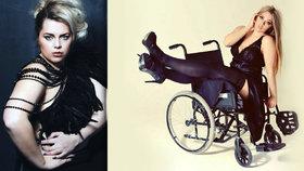 Katie Knowles se navzdory svému handicapu stala modelkou a slaví úspěch.