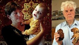 Po havárii stoupl počet zdeformovaných a postižených novorozenců o 300 %.