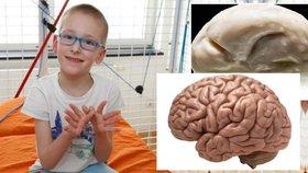 Malý Patrik trpí vzácnou vývojovou vadou! Jeho mozek je hladký bez obvyklých zvrásnění.