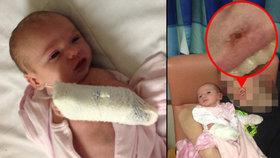 Chloe Clare málem zemřela poté, co jako miminko chytila herpes.