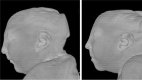 Snímky ukazují poškození hlav dvojčat, která se nakazila v 9. týdnu těhotenství virem zika. Hlavy jsou extrémně malé, mícha poškozená.