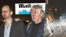 Brutalita uprchlíků v Calais stoupá: Jejich pasti zranily britské novináře, lidé demonstrují
