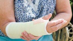 Osteoporóza: Řídnutí kostí má za následek zlomeniny.