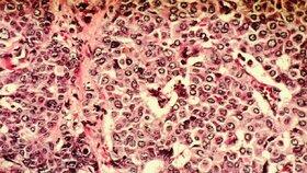Rakovinu prsu mohou mít i muži.