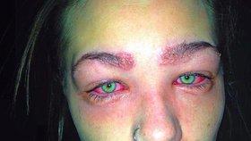 Dívčina alergická reakce na použitou barvu
