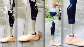Benešovští kriminalisté řeší krádež protézy za půl milionu korun.