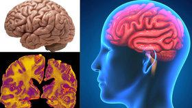 Mozek nejvíce ohrožuje Alzheimerova choroba.