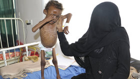 Podvýživa (ilustrační foto)