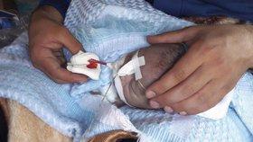 Smutné záběry ze syrského konfliktu: Při chemickém útoku v Idlíbu umírali civilisté včetně dětí