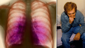 V baltimorské nemocnici evakuovali všechny kvůli úniku vzorku tuberkulózy (ilustrační foto)
