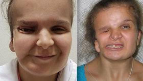 Katje (†17) matka řekla, že ji vezme zpět, když půjde na plastiku. Dívka po operaci zemřela.