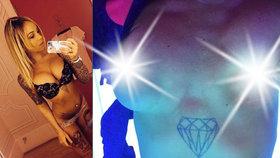 Amanda Marsh zažila horor, když jí po plastice prsou zažala ňadra mizet.