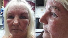 Ženu překvapila silná alergická reakce.