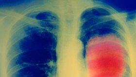Rakovina plic je nejčastější na Mostecku.