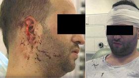 Brutální útok v Dublinu: Milanovi irští rasisté ukousli kus ucha!