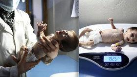 Srdcervoucí fotografie z války zmítané Sýrie: Nemluvně važící sotva 2 kg zmítající se v bolestech