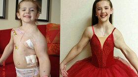 Dívka trpí od narození vzácnou nemocí.