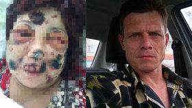 Kanibal Anatolij Ežkov ukousl své oběti nos i obě uši.