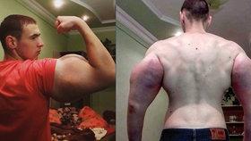 Kirill Tereshin (21) z Ruska si do svalů píchá nebezpečný olej, aby zlomil rekord v kulturistice