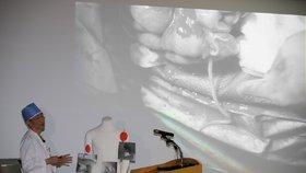 Lékaři našli v těle severokorejského vojáka neznámé larvy.