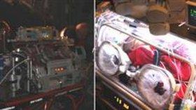 Čeští lékaři zachránili život tříměsíčnímu miminku.