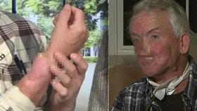 Muži roste utržený nos znovu na ruce.