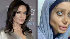 Íránka Sahar Tabar je posedlá vzhledem Angeliny Jolie.