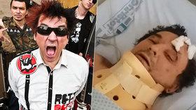 Frontman kapely Plexis promluvil z nemocničního lůžka.