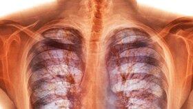 Cystická fibróza