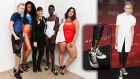 Modelka přišla o nohu kvůli toxickému šoku z tamponu. Teď jí amputovali i druhou.