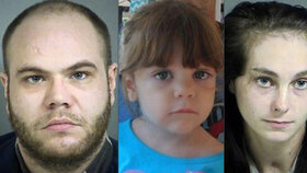 Rodiče hodili čtyřletou dívku do vany s vařící vodou. Dítě týrání nepřežilo.