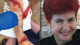 Pětapadesátiletá žena byla v Austrálii brutálně napadena žralokem.