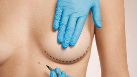 Francouzský kasační soud dnes nařídil nový proces v kauze vadných prsních implantátů francouzské firmy PIP, které dostaly desítky tisíc žen po celém světě, včetně Češek. (ilustrační foto)