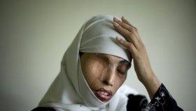 Oko za oko: Íránský soud nařídil oslepit ženu. Kyselinou připravila sokyni o zrak.