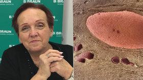Jana (60) má po dvou transplantacích ledvin