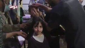 Přeživší po útoku v syrském městě Dúmá v péči lékařů
