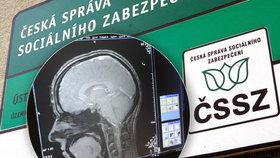 Česká správa sociálního zabezpečení dělá chyby při uznávání invalidních důchodů (ilustrační foto)