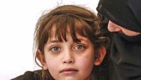 Sedmiletá Masa přežila chemický útok v Dúmě.