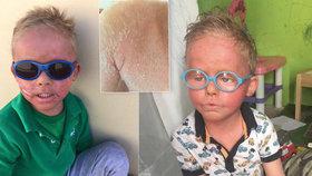 Martínek trpí vzácnou nemocí kůže – ichtyózou.