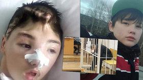 Ivan (15) bránil mámu před znásilněním a skončil v kómatu: Teď se bude muset znovu učit chodit