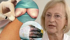 Lékařka varuje Čechy: Očkujte se, jinak můžete přijít o práci