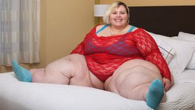 Obezita, jeden z vážných problémů současného světa
