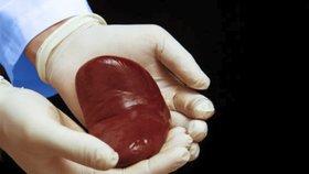Transplantace ledviny (Ilustrační foto)