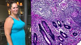 Eliška trpí Crohnovou chorobou. Nyní je jí lépe, čeká první dítě.