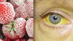 13 lidí onemocnělo ve Švédsku žloutenkou typu A po konzumaci mražených jahod.